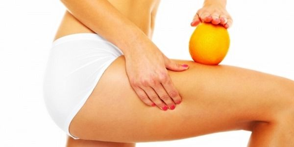5 Facts About Cellulite You Should Know